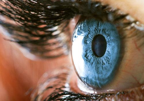 Laserska korekcija astigmatizma, laserska operacija astigmatizma, laserska operacija oka astigmatizam, lasersko skidanje astigmatizma
