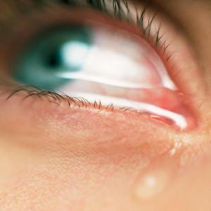 nešto u oku, strano tijelo u oku, upalo mi nešto u oko