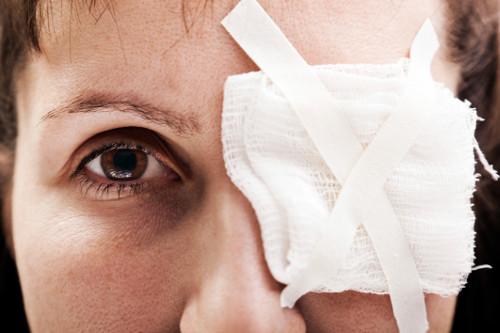 šljiva na oku, modrica ispod oka, masnica na oku