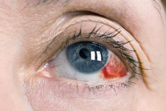 krv u oku, pucanje kapilara u oku