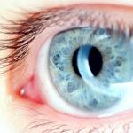Što je astigmatizam?