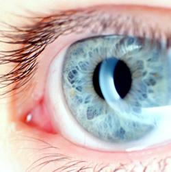 astigmatizam, što je astigmatizam, simptomi astigmatizma, korekcija astigmatizma