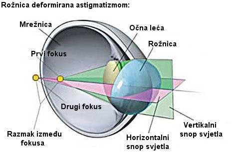 Astigmatizam, korekcija astigmatizma, dalekovidnost, kratkovidnost