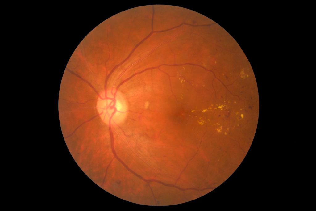 dijabetes, retinopatija