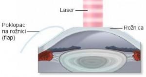 Excimer laser, laserska korekcija vida