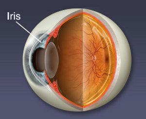 Šarenica (iris), Škiljavost (strabizam), Štapić