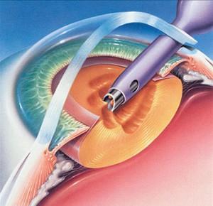 operacija katarakte, operacija mrene ultrazvukom