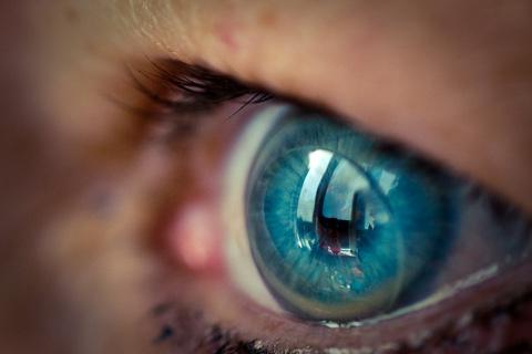 kontaktne leće komplikacije