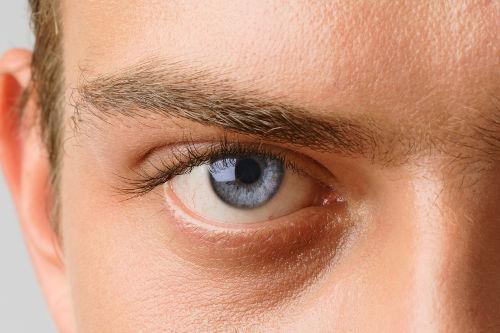 vrste glaukoma, glaukom vrste, glaukom tipovi