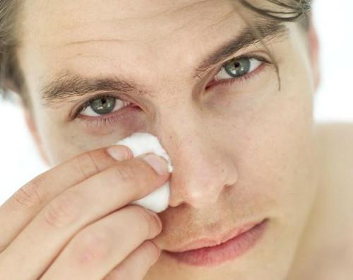 Uzroci natečenih očiju