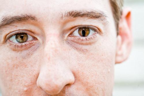 kolobom oka, kolobom šarenice