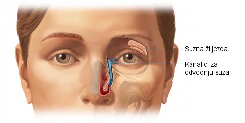 Blokirani suzni kanali simptomi, zatvoreni suzni kanali