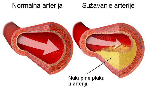 povišeni kolesterol, utjecaj kolesterola na vid