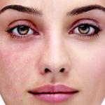 Očna rosacea – kako rosacea utječe na oči?