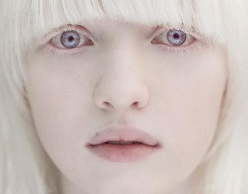 albinizam oka, ocni albinizam, albinizam oci, albino oči, albinizam vid