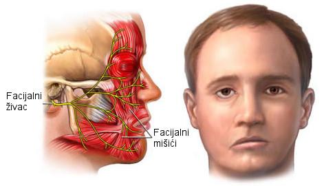 bellova paraliza slike, paraliza lica, bellova paraliza