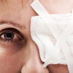 Šljiva na oku – koliko je ovo stanje opasno?