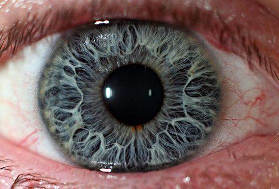 svrbež oka, svrbež očiju