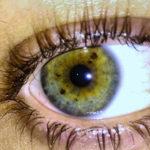 Zašto nastaju smeđe mrlje na šarenici oka?