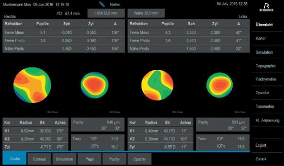Rodenstock aparat za oci, transparentan prikaz mjernih rezultata