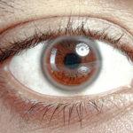 Saznajte na što ukazuje bijeli prsten na rožnici oka?