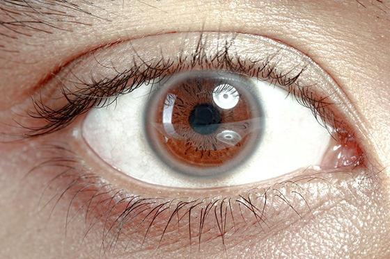 bijeli prsten na roznici oka, arcus senilis, visoki kolesterol